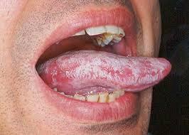 Witte tong door candida