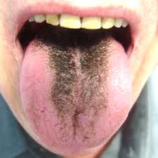 zwarte tong