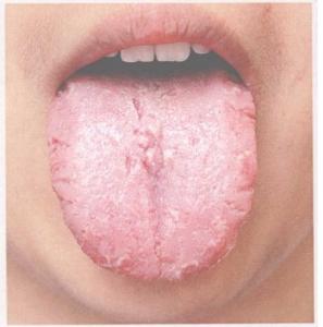 Barstjes in de tong