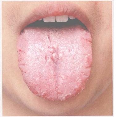 witte tong met rode puntjes