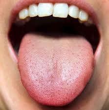 Gele aanslag tong