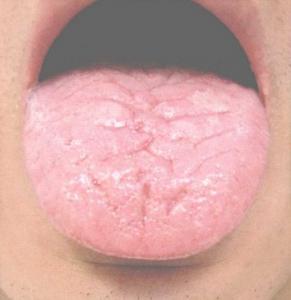 Geplooide tong